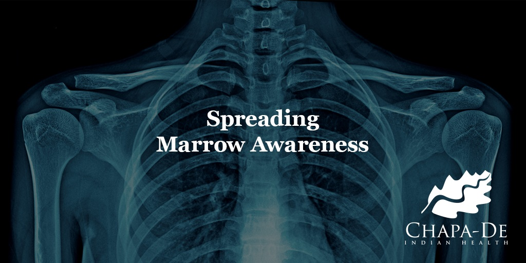 Spreading Marrow Awareness Chapa-De Indian Health Auburn Grass Valley | Medical Clinic